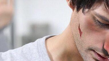 No solo las mujeres sufrende violencia, también los hombres