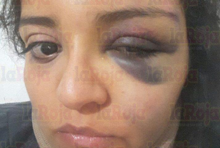 Al Defenderse de Abuso, Mujer Recibe Golpiza