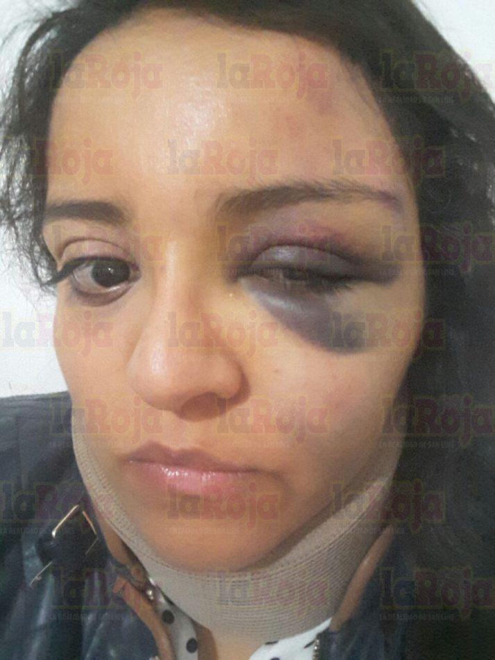 Ella recibe golpes brutales