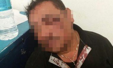 Roban, golpean y abandonan a comerciante en comunidad de Villa Hidalgo