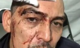 José Manuel Figueroa sufre fuerte accidente al montar a caballo, antes de presentar show